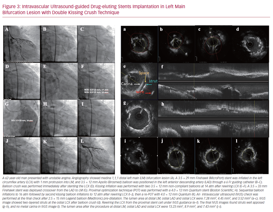 Intravascular Ultrasound-guided Drug-eluting Stents Implantation