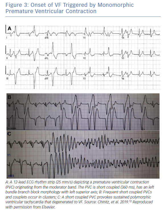 Onset of VF Triggered by Monomorphic Premature Ventricular Contraction