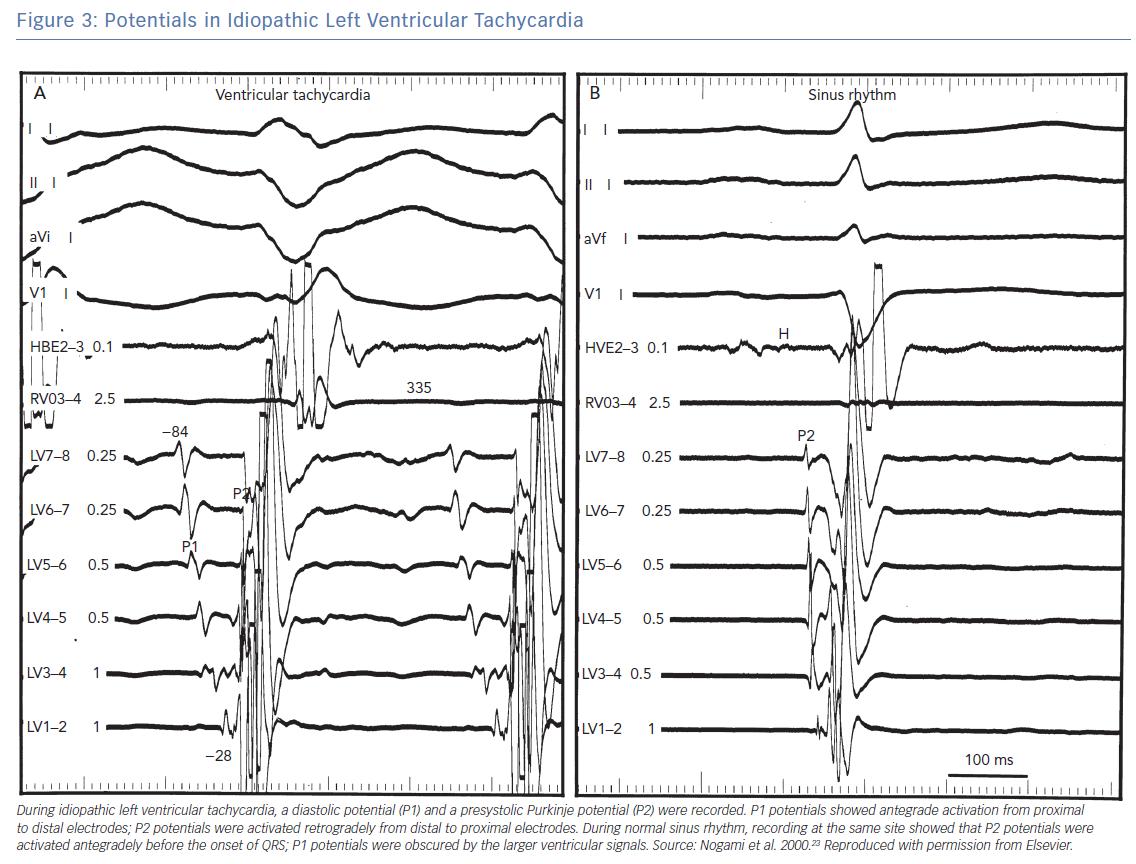 Potentials in Idiopathic Left Ventricular Tachycardia