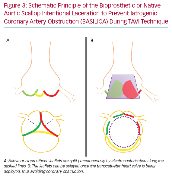 Schematic Principle of the Bioprosthetic