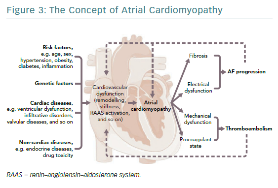Rhythm control atrial fibrillation | ECR Journal