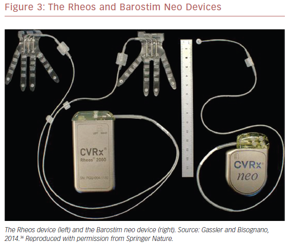 The Rheos and Barostim Neo Devices