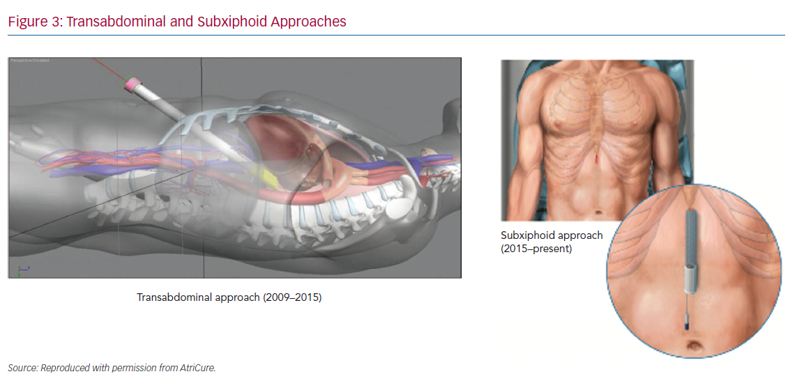 Transabdominal and Subxiphoid Approaches