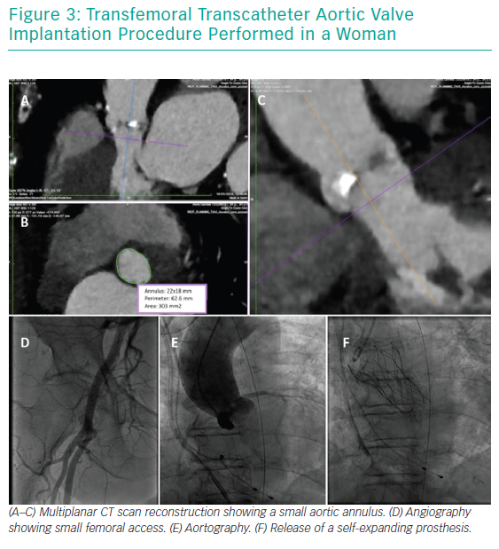 Transfemoral Transcatheter Aortic Valve Implantation Procedure Performed in a Woman