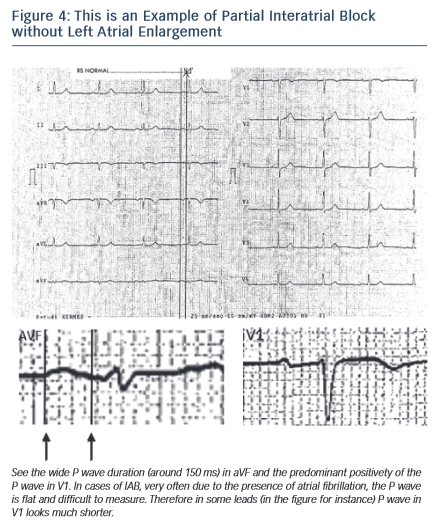 Figure 4: This is an Example of Partial Interatrial Block without Left Atrial Enlargement