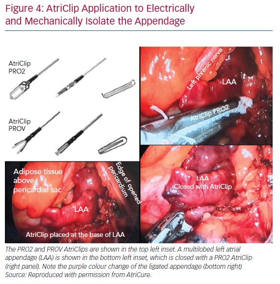 AtriClip Application to Electrically and Mechanically Isolate the Appendage