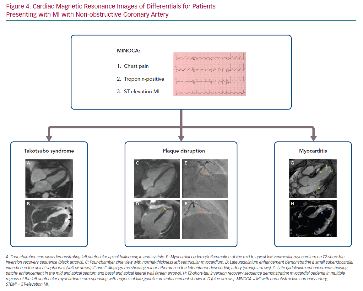 Cardiac Magnetic Resonance Images of Differentials for Patients