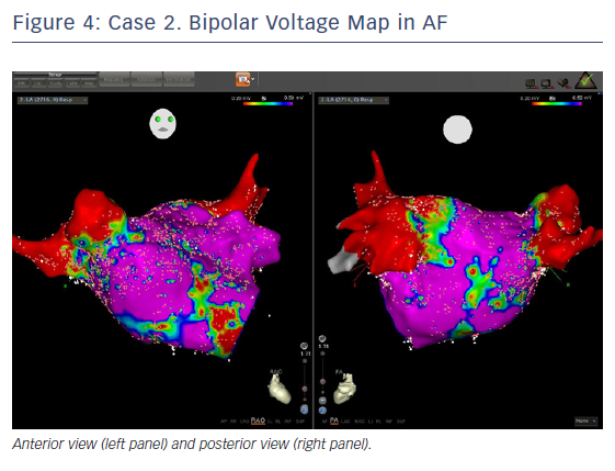 Case 2. Bipolar Voltage Map in AF