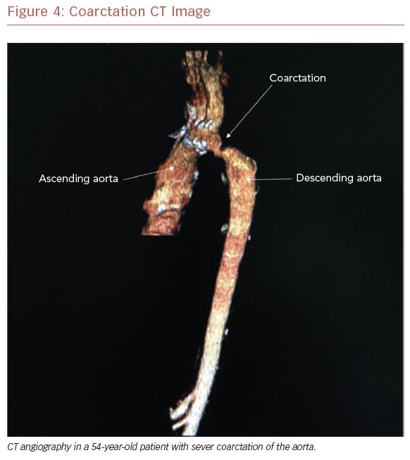 Coarctation CT Image