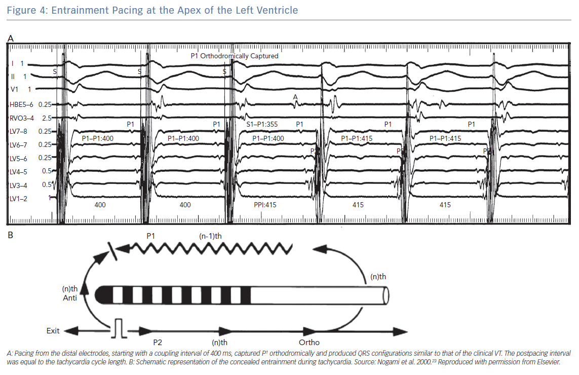 Entrainment Pacing at the Apex of the Left Ventricle