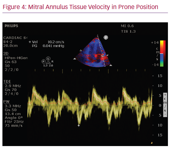 Mitral Annulus Tissue Velocity in Prone Position