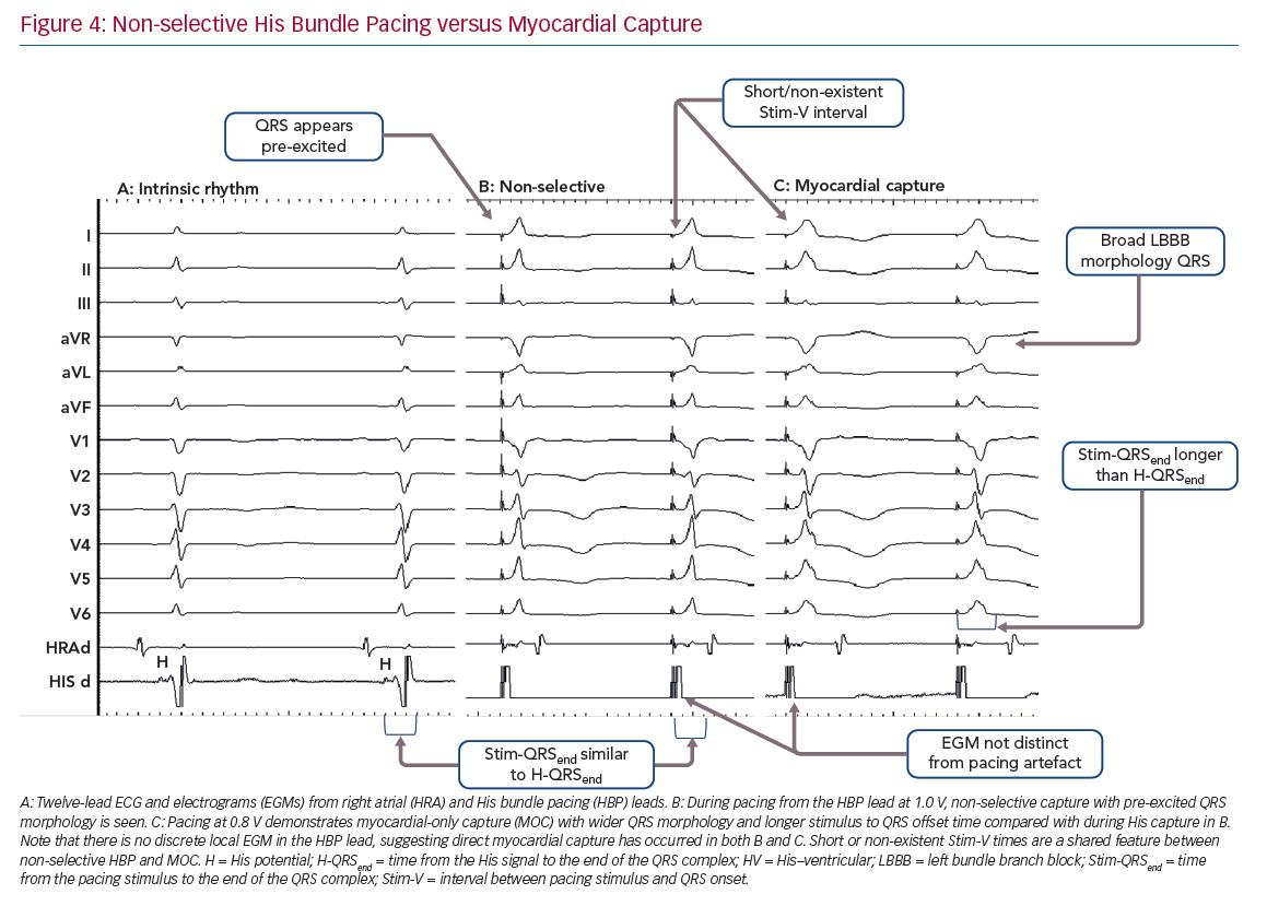 Non-selective His Bundle Pacing versus Myocardial Capture