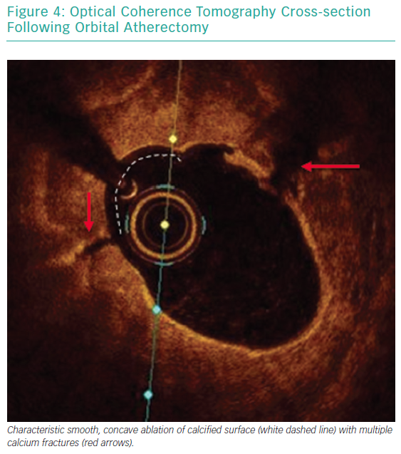 Optical Coherence Tomography Cross-section Following Orbital Atherectomy