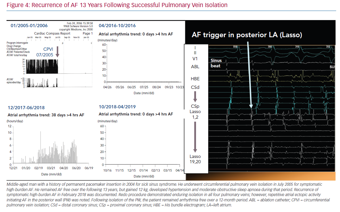 Recurrence of AF 13 Years Following Successful Pulmonary Vein Isolation