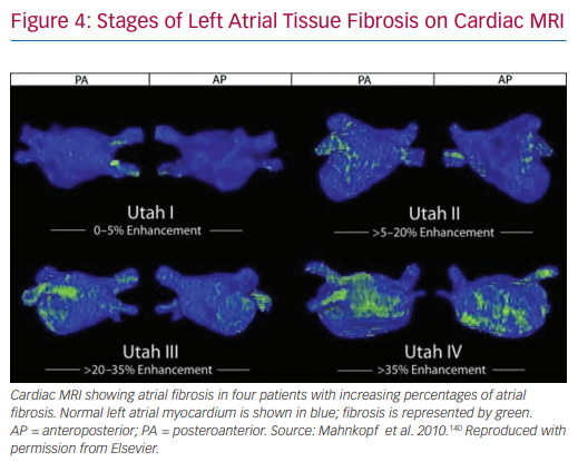 Stages of Left Atrial Tissue Fibrosis on Cardiac MRI