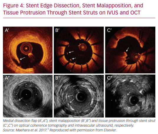 Stent Edge Dissection, Stent Malapposition