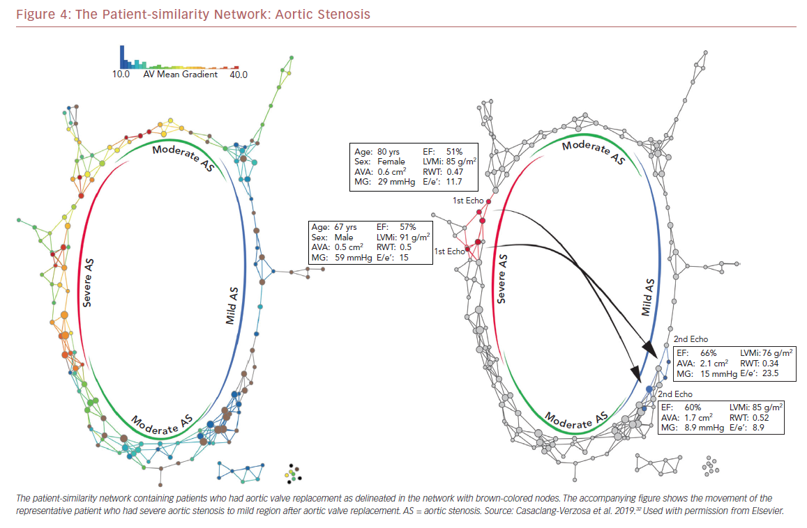 The Patient-similarity Network: Aortic Stenosis