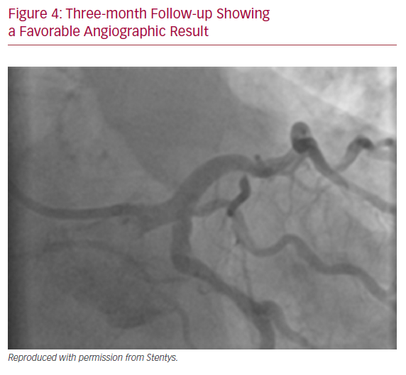 Three-month Follow-up Showing a Favorable Angiographic Result