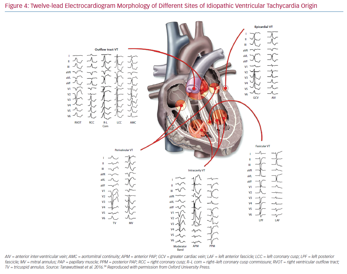 Twelve-lead Electrocardiogram Morphology