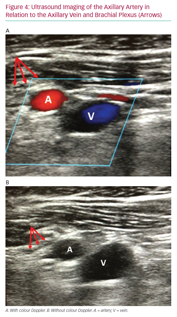 Ultrasound Imaging of the Axillary Artery