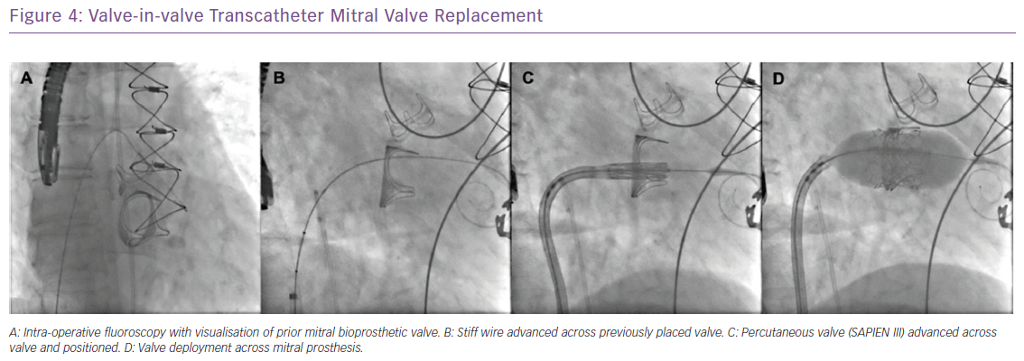 Valve-in-valve Transcatheter Mitral Valve Replacement
