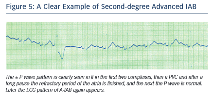 Figure 5: A Clear Example of Second-degree Advanced IAB