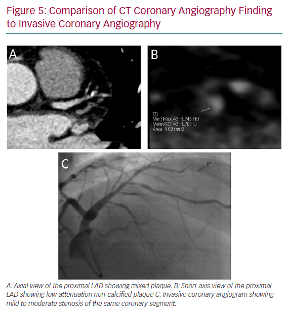 Comparison of CT Coronary Angiography Finding to Invasive Coronary Angiography