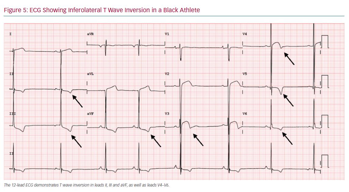 ECG Showing Inferolateral T Wave Inversion in a Black Athlete