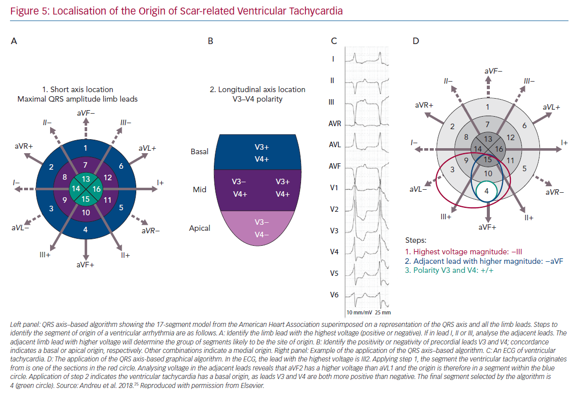 Localisation of the Origin of Scar-related Ventricular Tachycardia