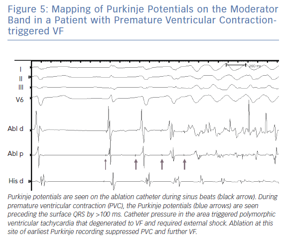 Mapping of Purkinje Potentials on the Moderator Band in a Patient with Premature Ventricular Contractiontriggered VF