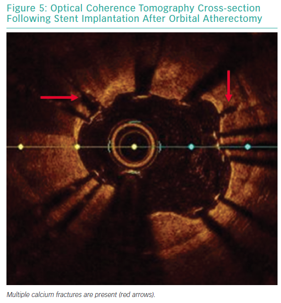 Optical Coherence Tomography Cross-section