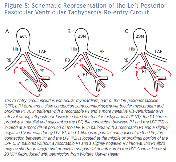Schematic Representation of the Left Posterior Fascicular Ventricular Tachycardia Re-entry Circuit