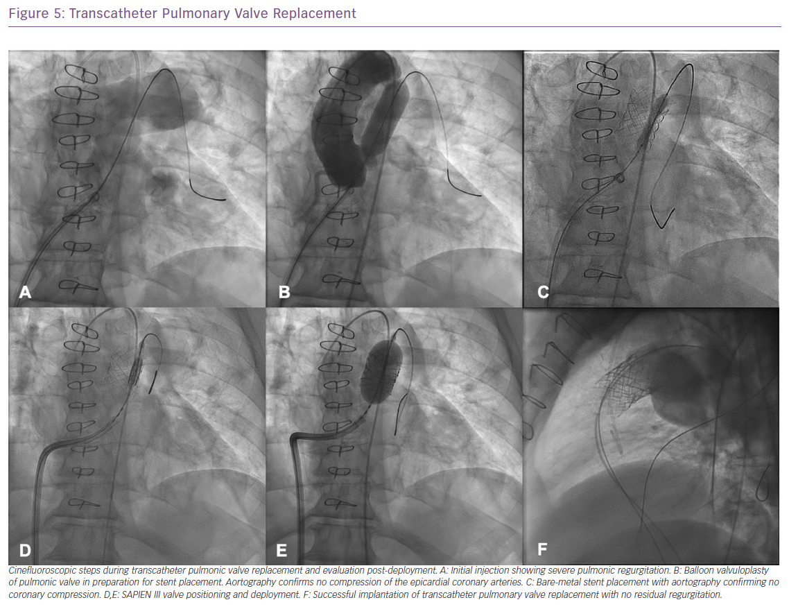 Transcatheter Pulmonary Valve Replacement