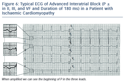 Figure 6: Typical ECG of Advanced Interatrial Block (P ± in II, III, and VF and Duration of 180 ms) in a Patient with Ischaemic Cardiomyopathy
