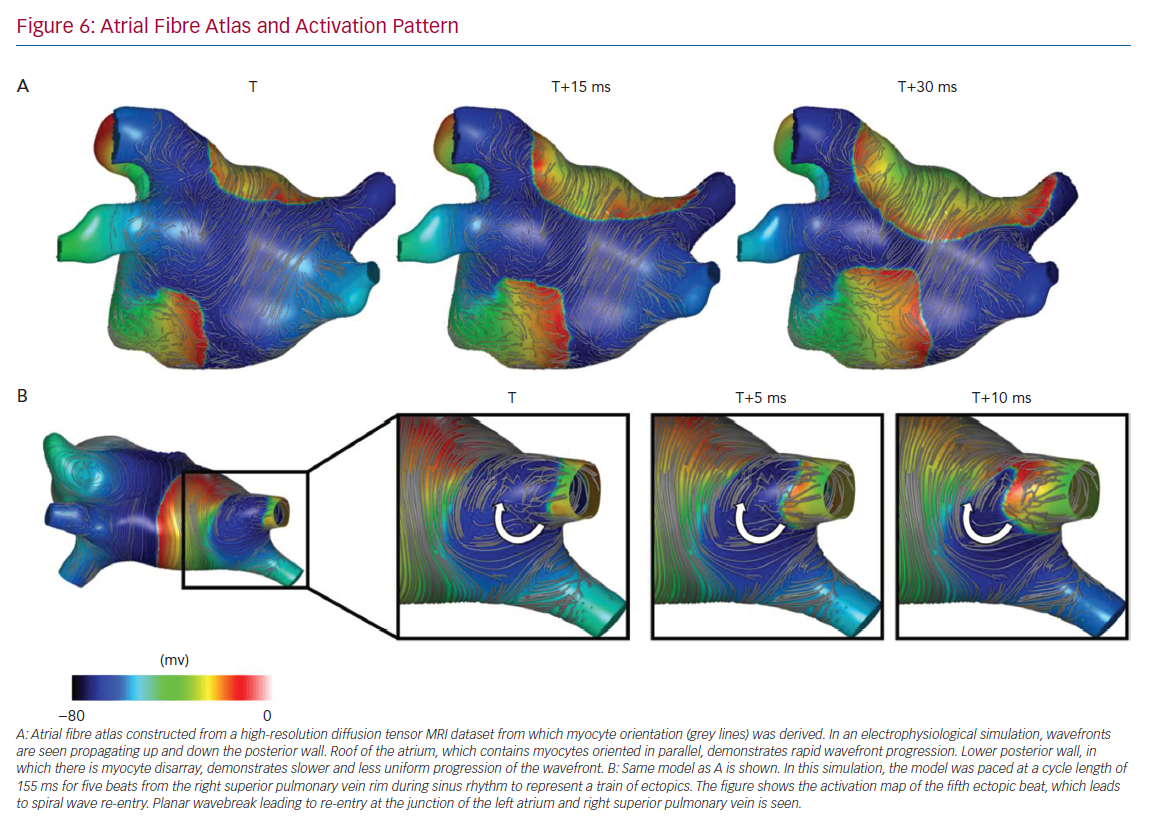 Atrial Fibre Atlas and Activation Pattern