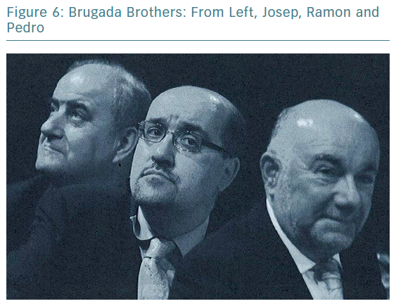 Brugada Brothers: From Left, Josep, Ramon and Pedro