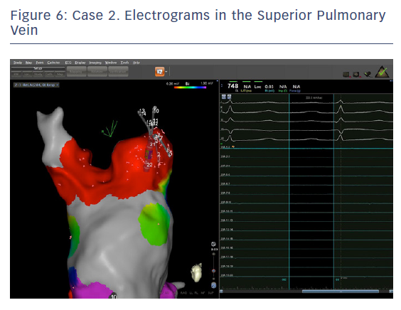 Case 2. Electrograms in the Superior Pulmonary Vein