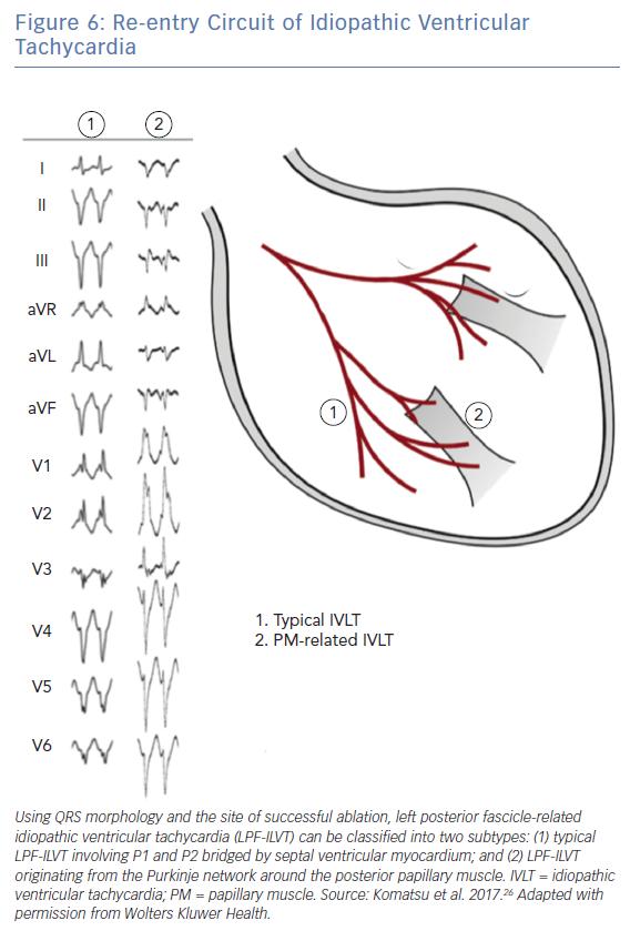 Re-entry Circuit of Idiopathic Ventricular Tachycardia