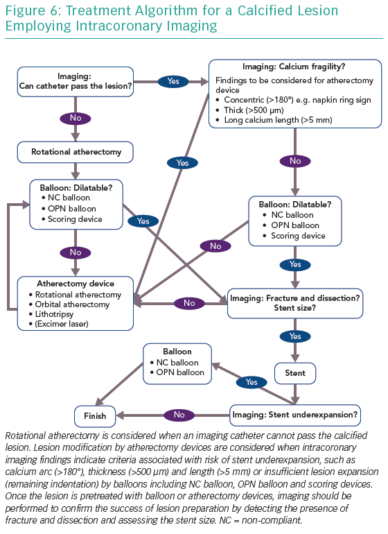 Treatment Algorithm for a Calcified Lesion