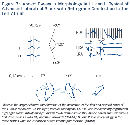 Figure 7: Above: P-wave ± Morphology in I II and III Typical of Advanced Interatrial Block with Retrograde Conduction to the Left Atrium