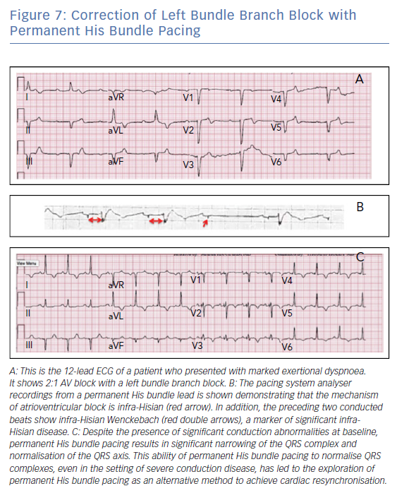 Correction of Left Bundle Branch Block with Permanent His Bundle Pacing