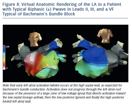 Figure 8: Virtual Anatomic Rendering of the LA in a Patient with Typical Biphasic (±) Pwave in Leads II, III, and a VF Typical of Bachmann's Bundle Block