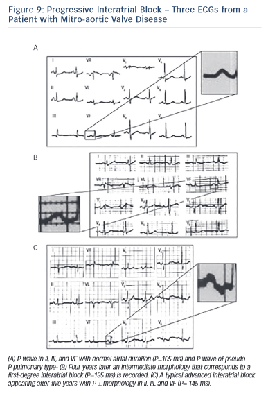Figure 9: Progressive Interatrial Block – Three ECGs from a Patient with Mitro-aortic Valve Disease
