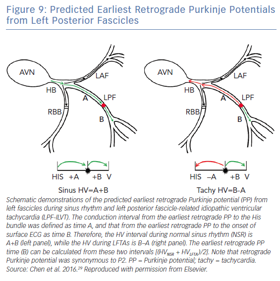 Predicted Earliest Retrograde Purkinje Potentials from Left Posterior Fascicles