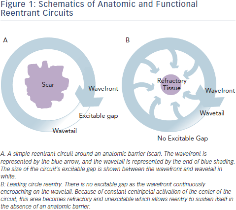 Schematics of Anatomic and Functional Reentrant Circuits