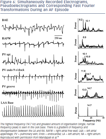 Electrograms, Pseudoelectrograms and Corresponding Fast Fourier Transformations