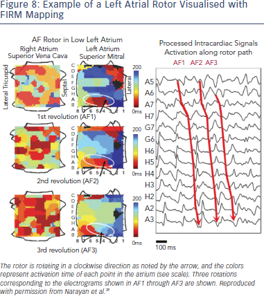 Left Atrial Rotor Visualised with FIRM Mapping