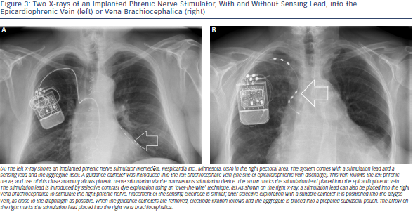 Two X-rays of an Implanted Phrenic Nerve Stimulator, With and Without Sensing Lead, into thel Epicardiophrenic Vein (left) or Vena Brachiocephalica (right)