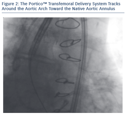 Figure 2: The Portico™ Transfemoral Delivery System Tracks Around the Aortic Arch Toward the Native Aortic Annulus
