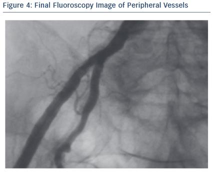 Figure 4: Final Fluoroscopy Image of Peripheral Vessels